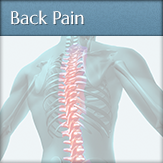 Back Pain - Decuypere Clearwater Chiropractic
